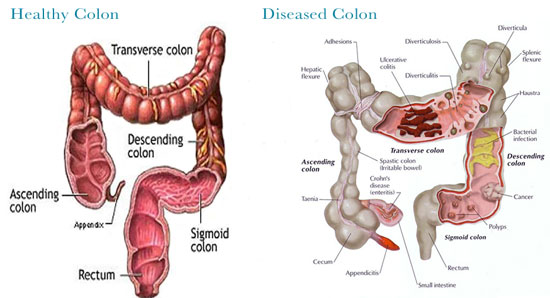 colon-photos
